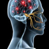 Microvascular Decompression for Trigeminal Neuralgia